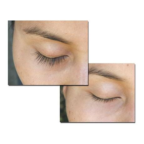 Renew™ Eyelash Revitalizer