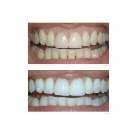 NuPearl® Teeth Whitening Pen