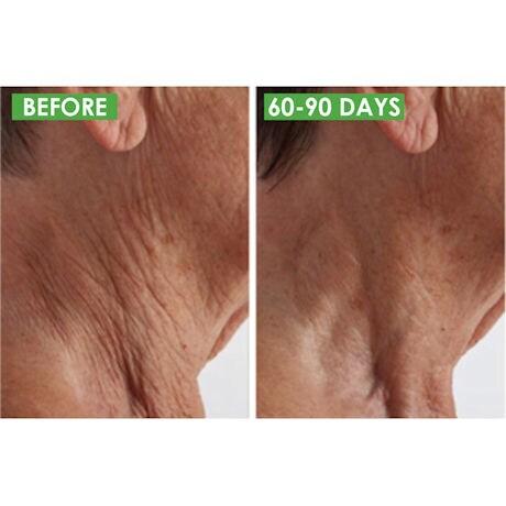 Crepe Rx Skin Cream