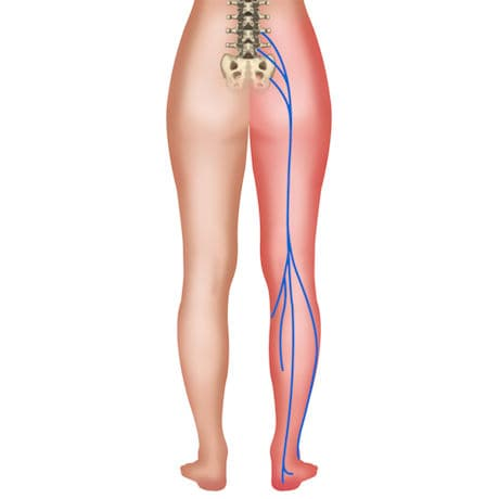 Sciaticure Sciatic Nerve Dermal Patch