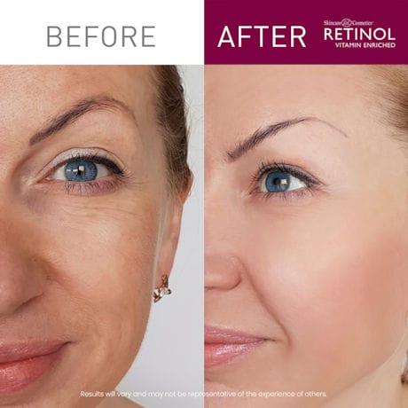Retinol Day & Night Duo Face Cream