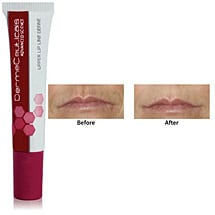 Erase Vertical Lip Lines